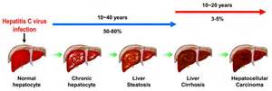 liver bacterial infections picture 6