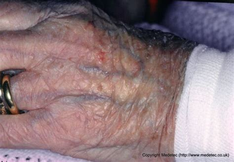 disease and fragile skin picture 1