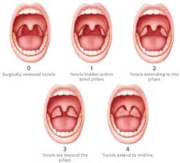 do swollen tonsils cause sleep apnea picture 2