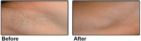 laser hair removal new york picture 2