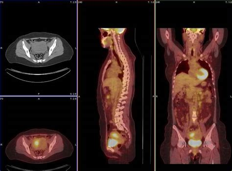 ct scan liver spots picture 6