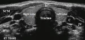 thyroid isthmus is normal picture 3