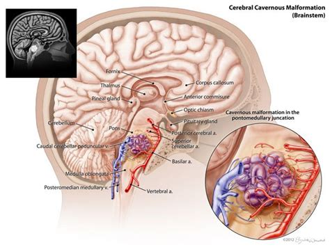 cavernous liver hemangioma picture 3