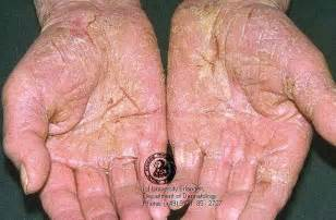 eczema relief picture 1