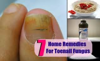 best toe nail fungus cure picture 13