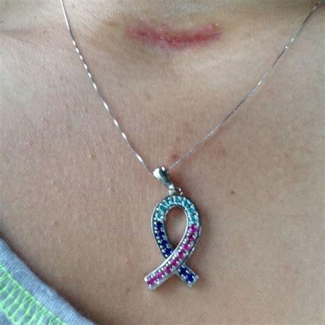 ano ang mga sintomas ng may cervical cancer picture 6