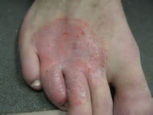 herbal psoriasis remedies picture 13