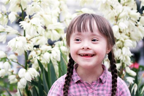 aging in down syndrome picture 17