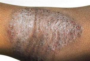 does eczema darken skin picture 10