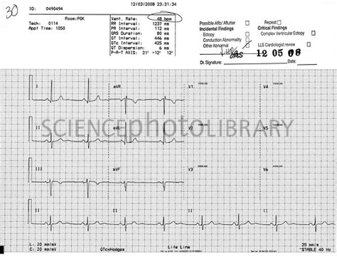 abnormal ekg and high blood pressure picture 3