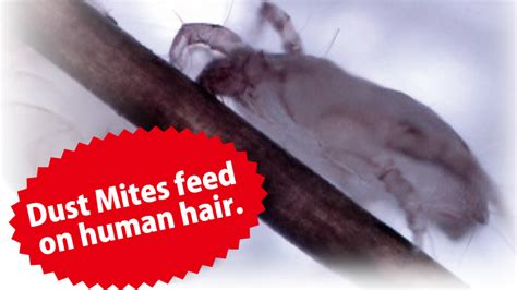 allrgies to human hair picture 13