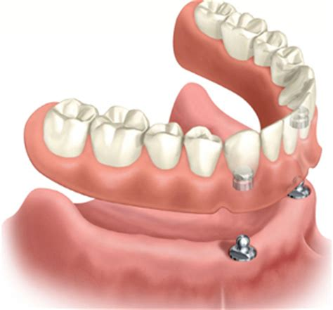 can h be added to denture picture 3