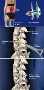 standard process artiritis pain picture 17