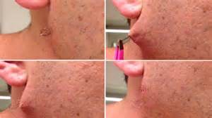 pictures of ingrown hair ps picture 9