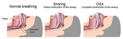 obstructive sleep apnea risk factors picture 6