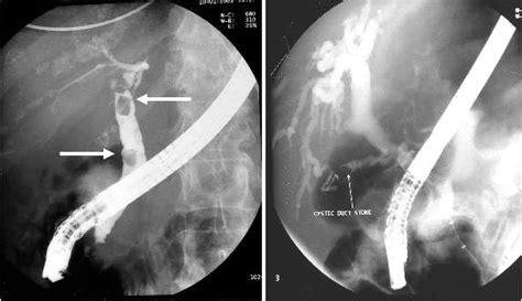 new technique of gallstones removel picture 22