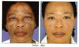 dark skin pigment picture 1