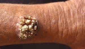 common warts picture 18