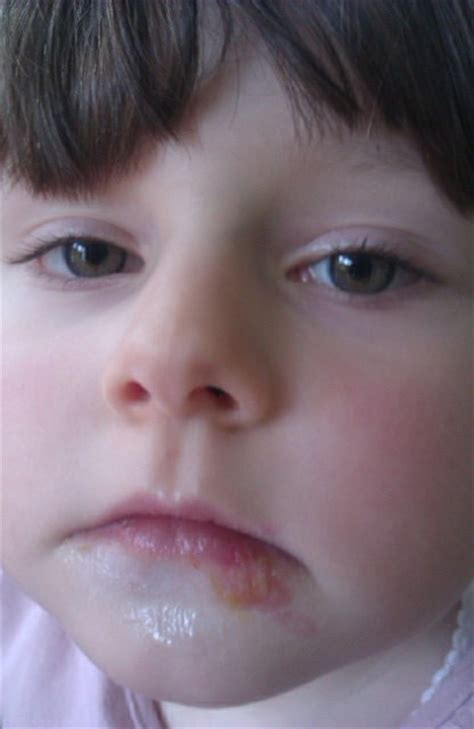 child woke up with a swolen lip picture 8