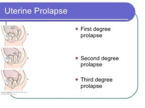 occurrence of bladder prolapse in men picture 9