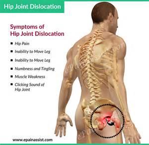 back ache leg pain picture 10