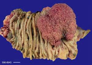 colon cancer with skin metastases picture 9