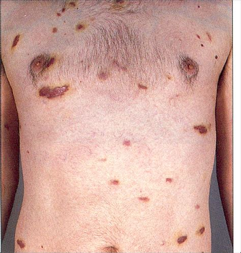 herpes type 2 symptoms and pictures picture 14