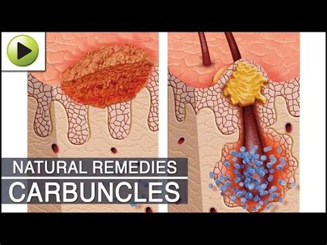 carbuncles natural cures earthclinic picture 3