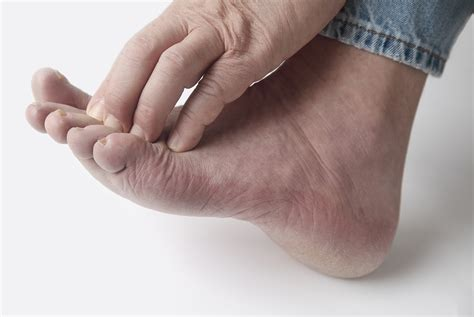 causes feeling of legs foot and hands asleep picture 9