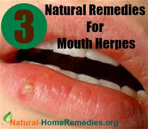natural treatment for herpes picture 3