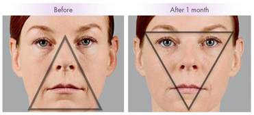 face lift skin turn black picture 6