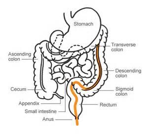 polyps of the colon picture 9