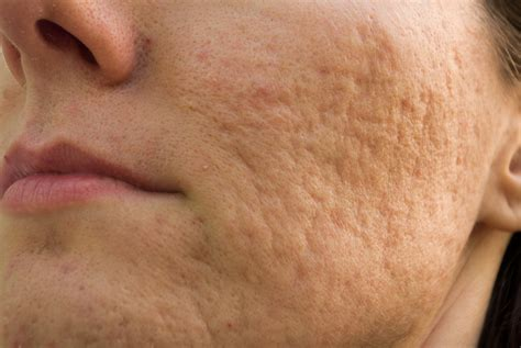 Acne scarring picture 6
