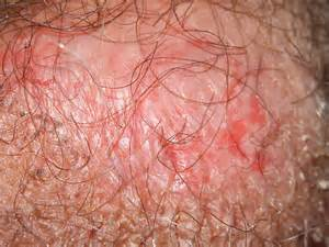 dry skin around vaginal area picture 10
