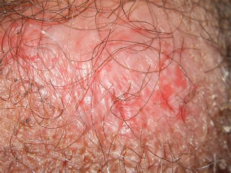 dry skin around vaginal area picture 13