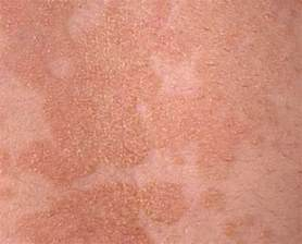 pictures of pet skin rashes picture 11