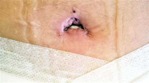 tummy tuck and yeast infectioms picture 1