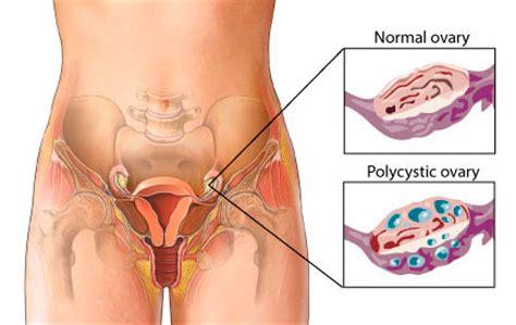 std tulo symptoms picture 6
