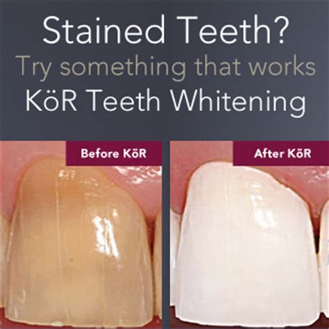 fort worth tooth whitening picture 15