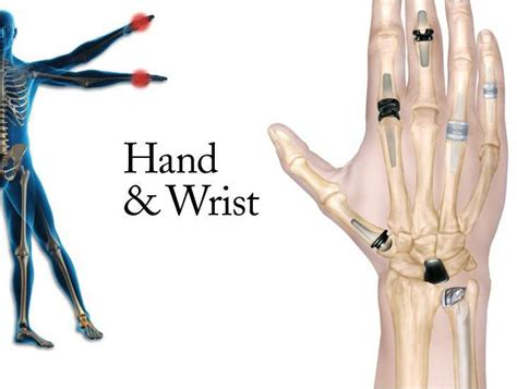 finger joint replacements picture 14