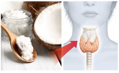 coconut oil for thyroid health picture 6