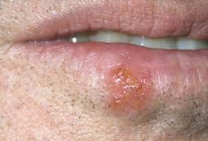 what causes blisters herpes picture 6