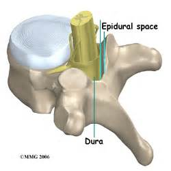 does spidural injection cause erection problems picture 13
