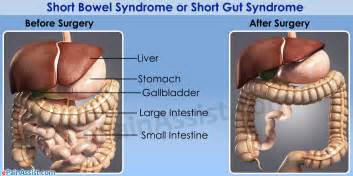short bowel syndrome picture 5