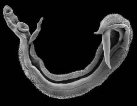 parasites in intestinal tract of humans picture 3