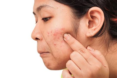 acne support picture 7