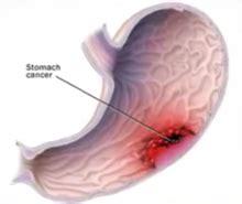 medical malpratice cases involving colon cancer picture 6
