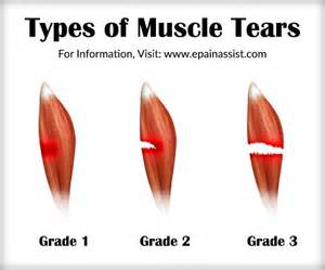diagnose muscle tears picture 7