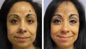 zeno cystic acne picture 7
