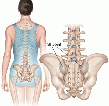 sacroiliac joint back injury settlement amounts picture 12